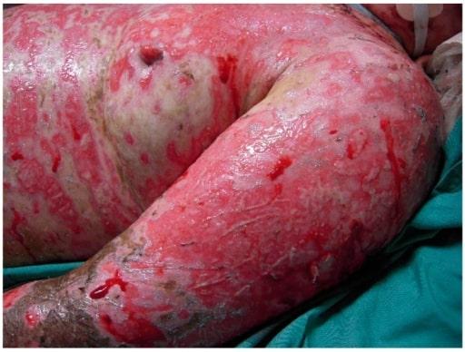 Review of Toxic Epidermal Necrolysis