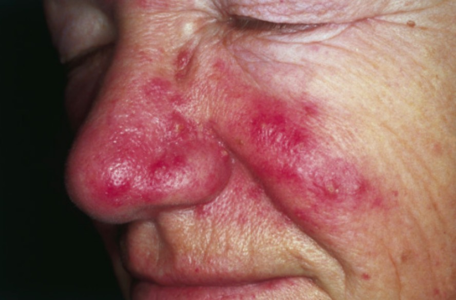 Rosacea erythema and telangiectasia