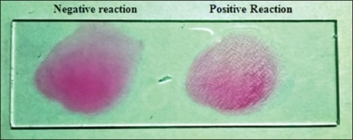 Rose Bengal plate test for brucellosis