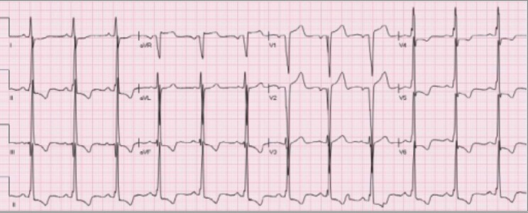 STE secondary to left ventricular hypertrophy