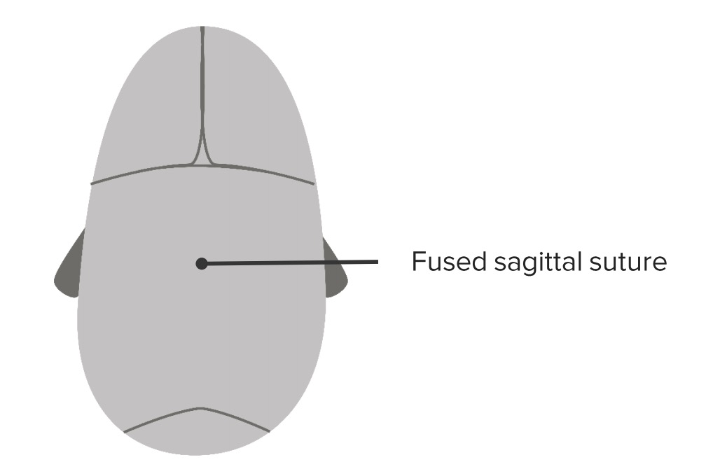 Sagittal craniosynostosis