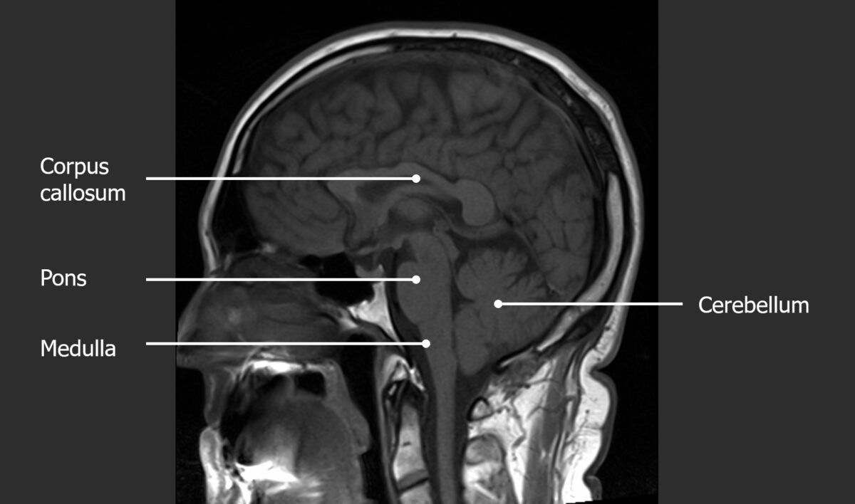 Sagittal cut of a normal T1 MRI of the head