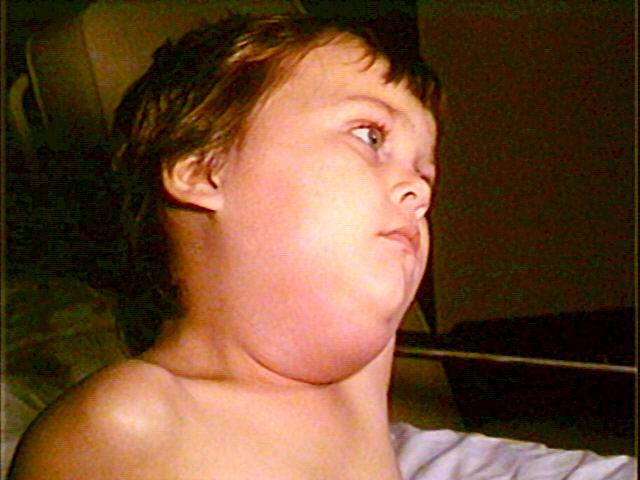 Salivary gland swelling due to mumps