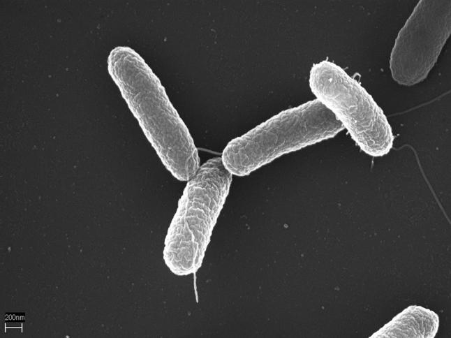 Salmonella enterica serotype Typhimurium