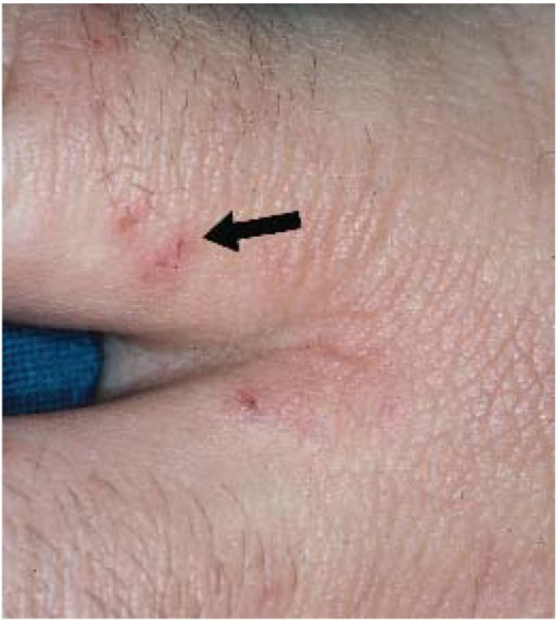 Scabies with visible burrow