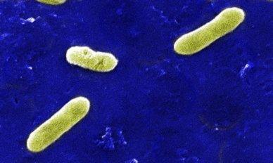 Scanning electron micrograph of Bordetella bronchiseptica