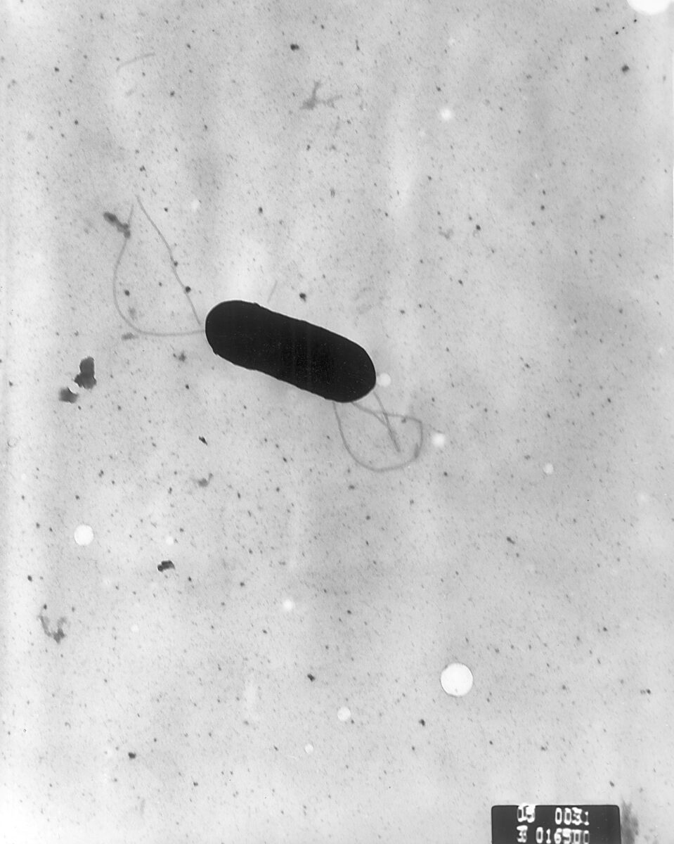 Scanning electron micrograph of Listeria monocytogenes bacterium