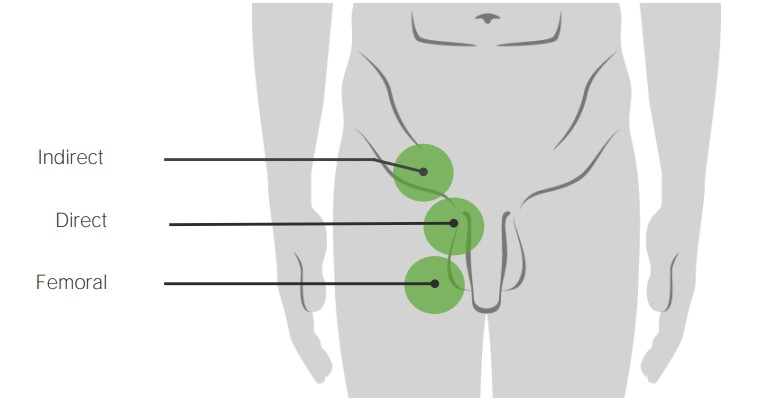 Schematic diagram of the difference in location between direct inguinal hernias