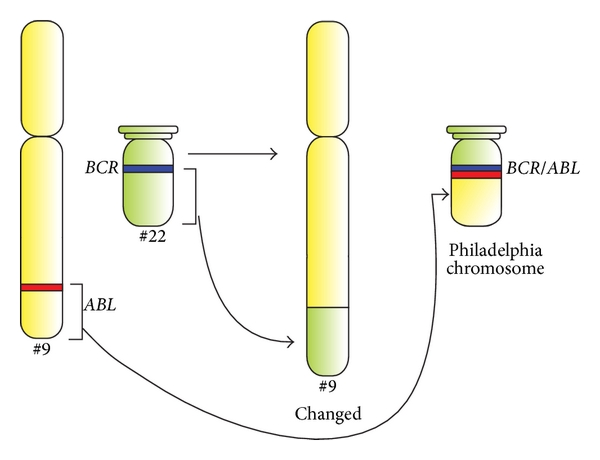 Schematic diagram of translocation in Philadelphia chromosome