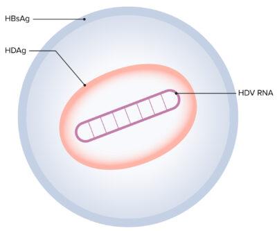 Hepatitis D virus (HDV)_