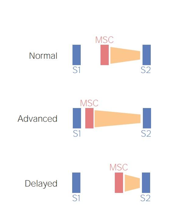 Schematic preload-dependent changes in mitral valve prolaps