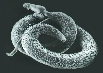 Schistosoma mansoni adult Toxocariasis