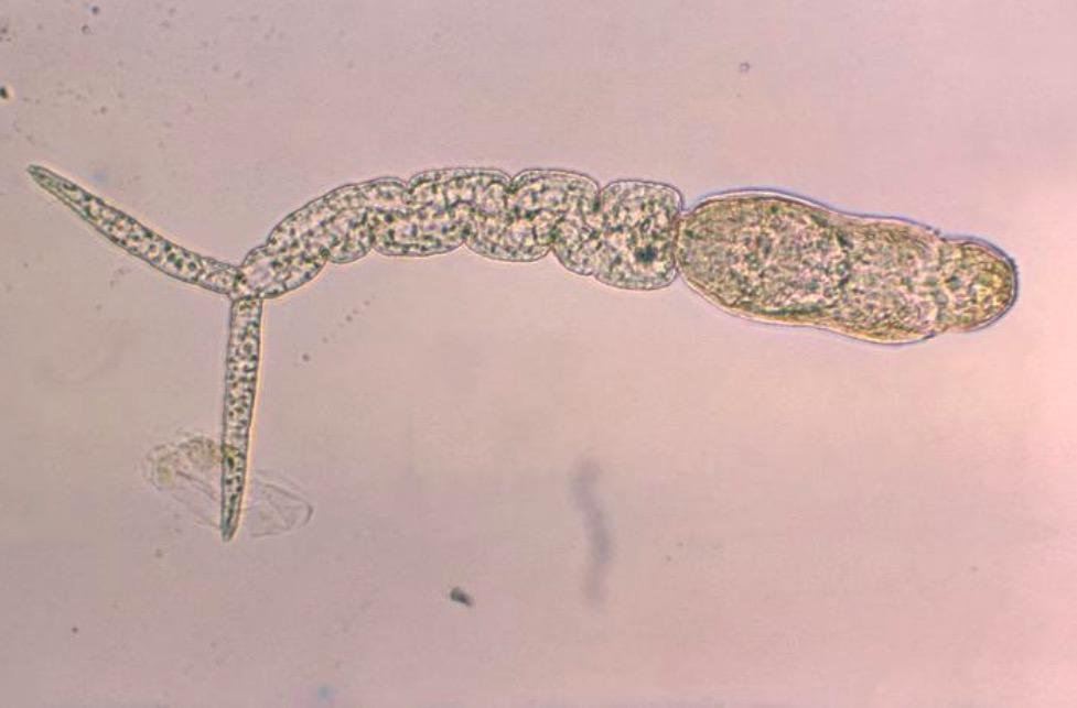 schistosomiasis uptodate
