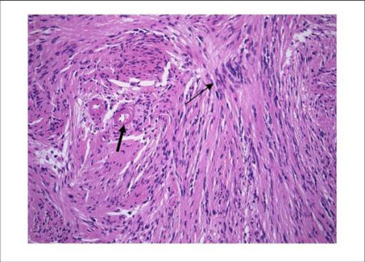 Schwannoma histology