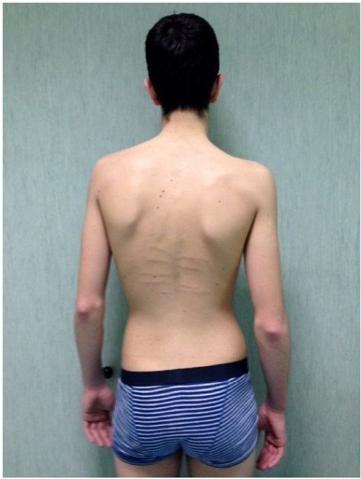 Scoliosis Marfan syndrome