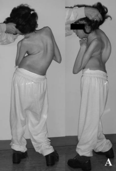 Scoliosis in Rett syndrome