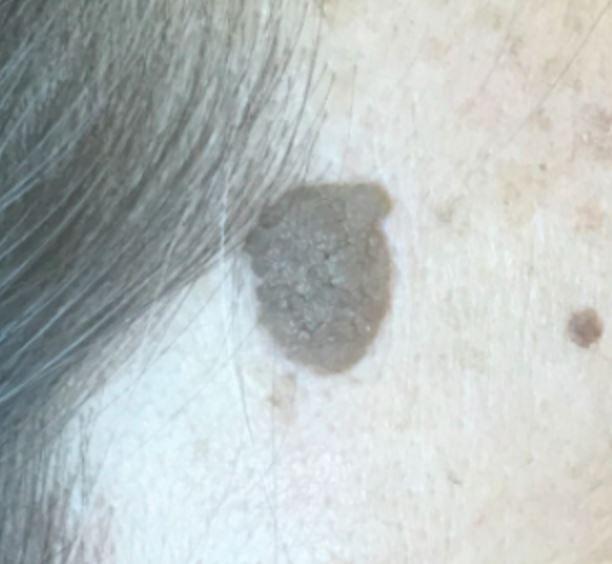 Seborrheic keratosis on the head
