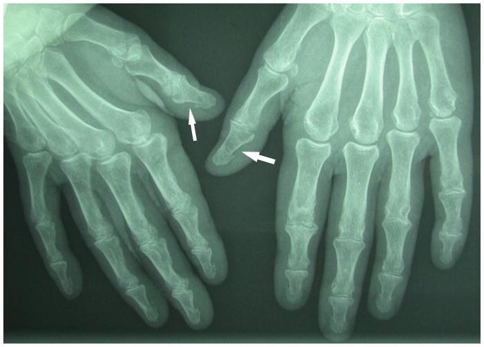 Secondary hyperparathyroidism hand radiograph