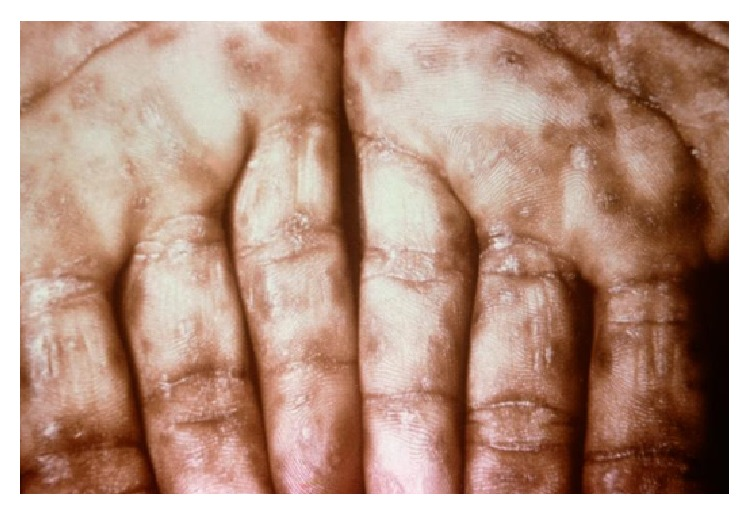 Secondary syphilis lesions on palms