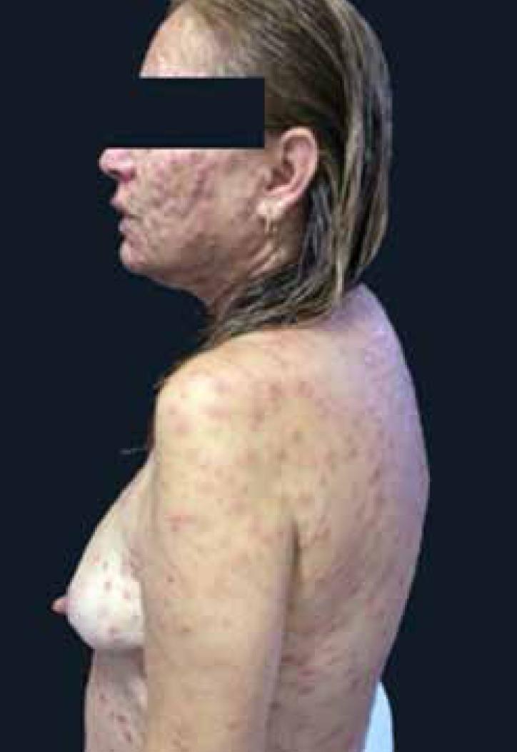 Secondary syphilis maculopapular rash