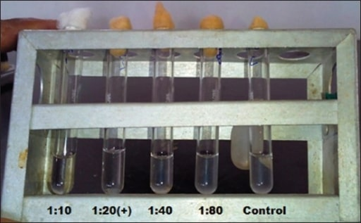 Serum tube agglutination test for brucellosis