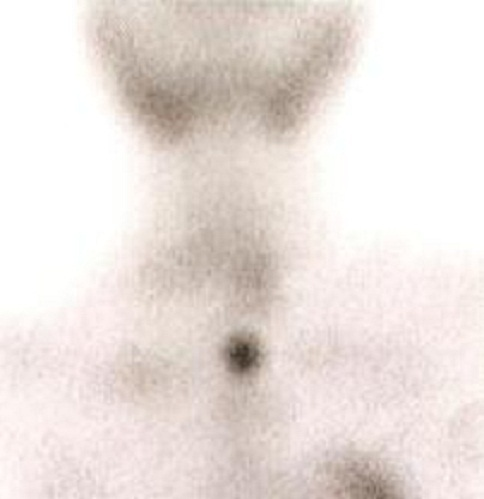 Sestamibi parathyroid scintigraphy