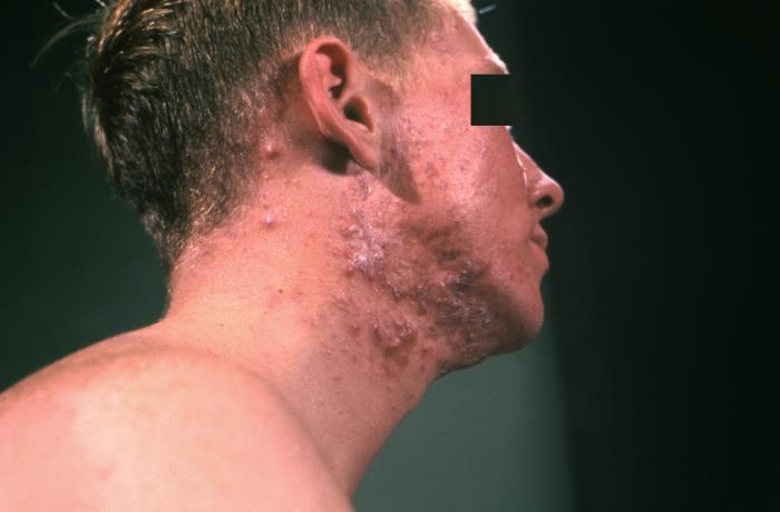 Severe acne vulgaris