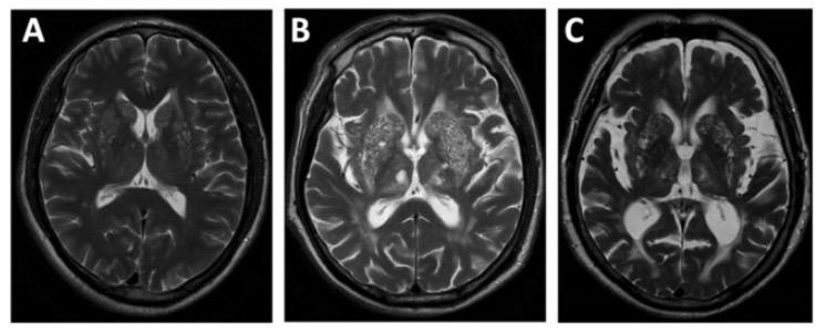 Severe basal ganglia EPVS