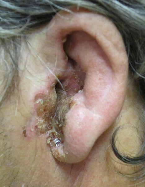 Severe case of otitis externa