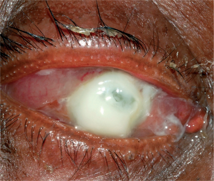 Severe case of suppurative corneal ulcer corneal abrasion