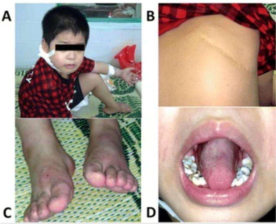 Severe congenital neutropenia lesions