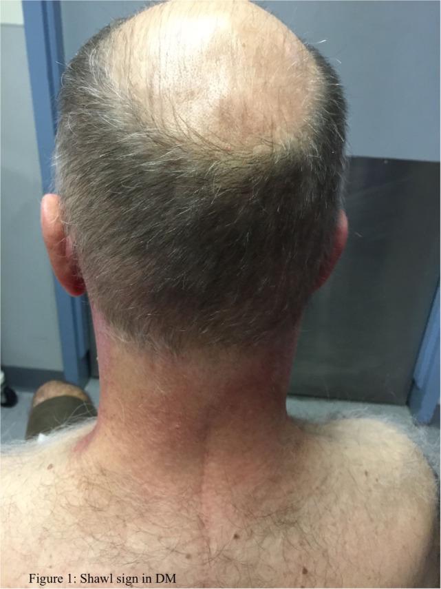 Shawl sign in dermatomyositis