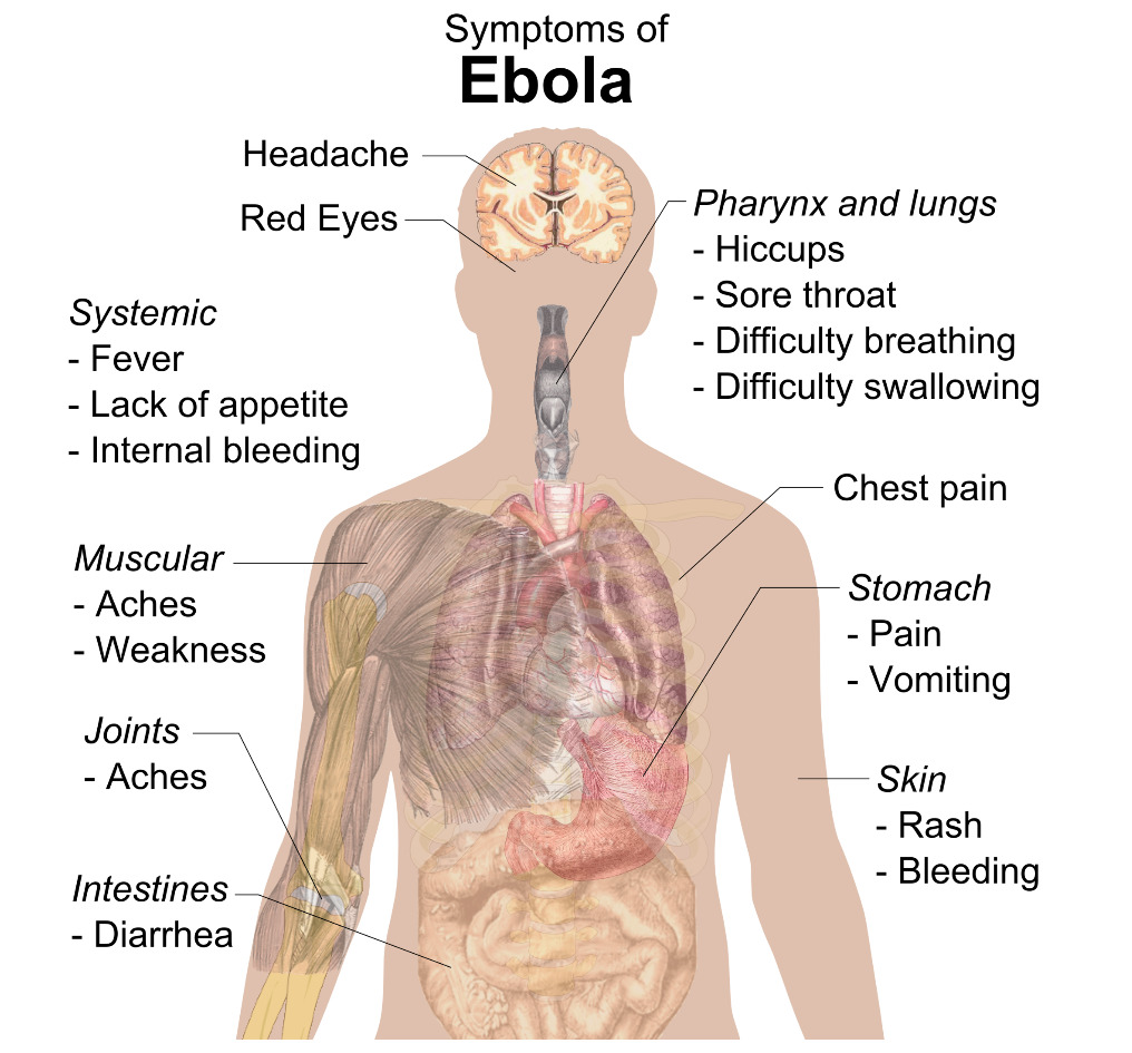 Signs and Symptoms of Ebola