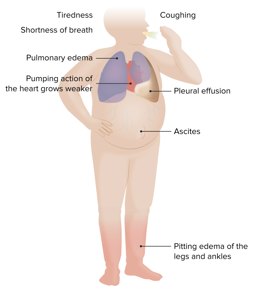 Signs of CHF