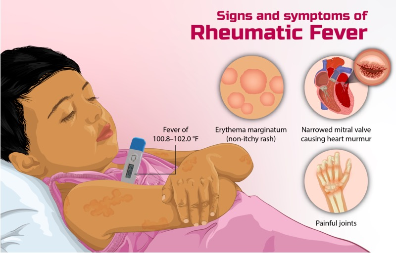 Signs of rheumatic fever