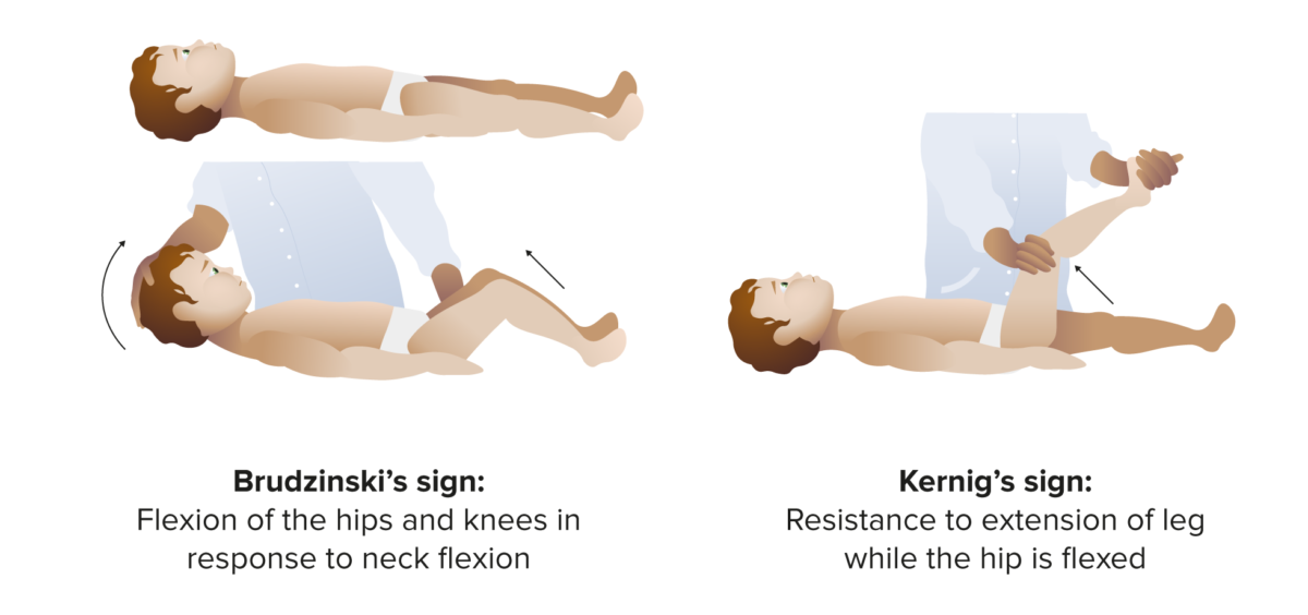 Signs positive signs for meningitis