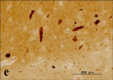 Silver stain showing a neurofibrillary tangle within neuronal cytoplasm