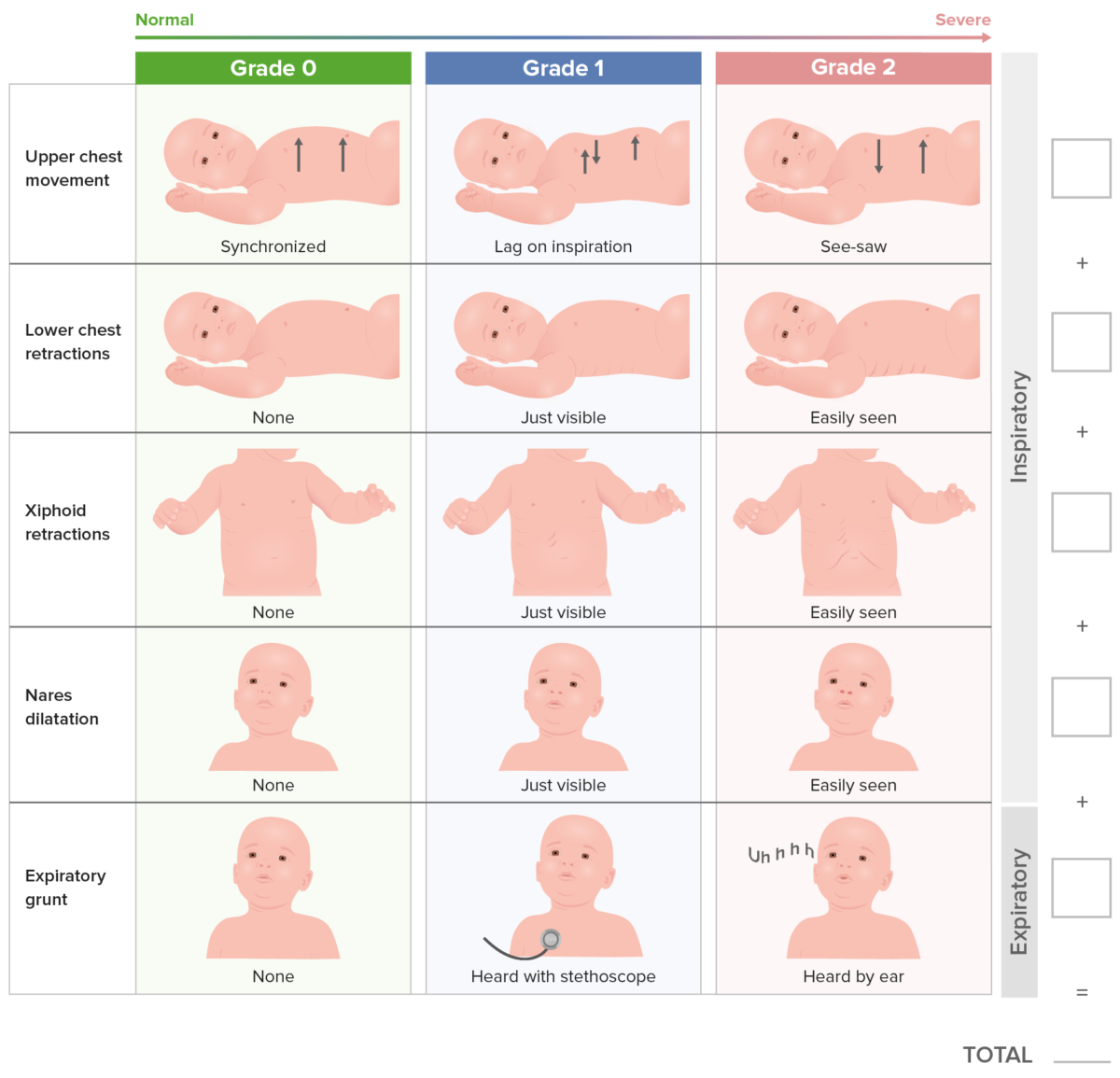 Silverman scoring system for respiratory difficulty