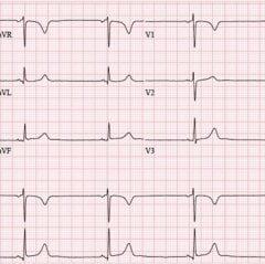 Sinus bradycardia at 42 bpm