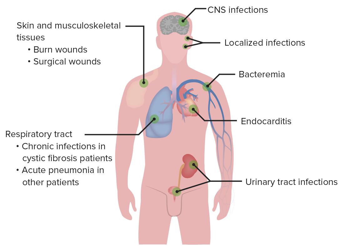Sites of Pseudomonas infection