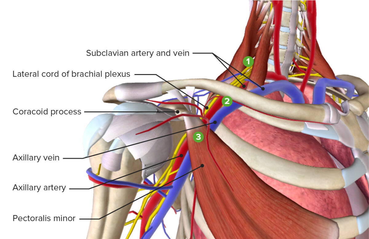 Sites of thoracic outlet syndrome