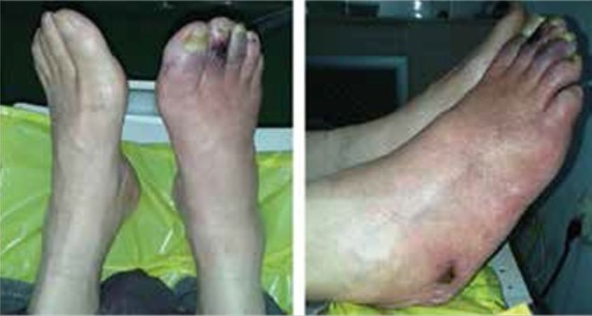 Skin changes and ulcers in peripheral artery disease