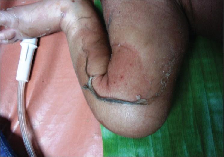 Skin peeling in staphylococcal scalded skin syndrome