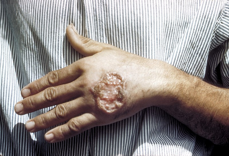 Skin ulcer due to leishmaniasis