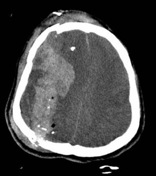 CT image of patients skull fractures