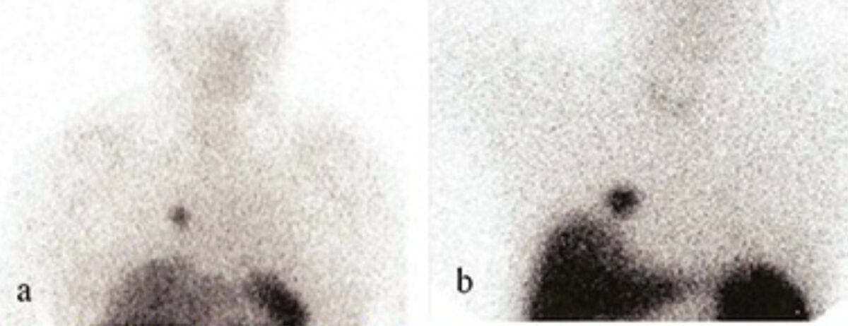 Somatostatin receptor scintigraphy of pulmonary carcinoids
