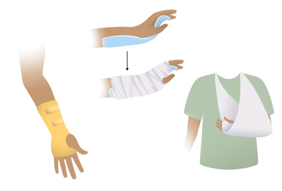 Splinting options for forearm
