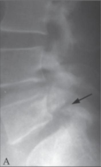 Spondylolysis on x-ray