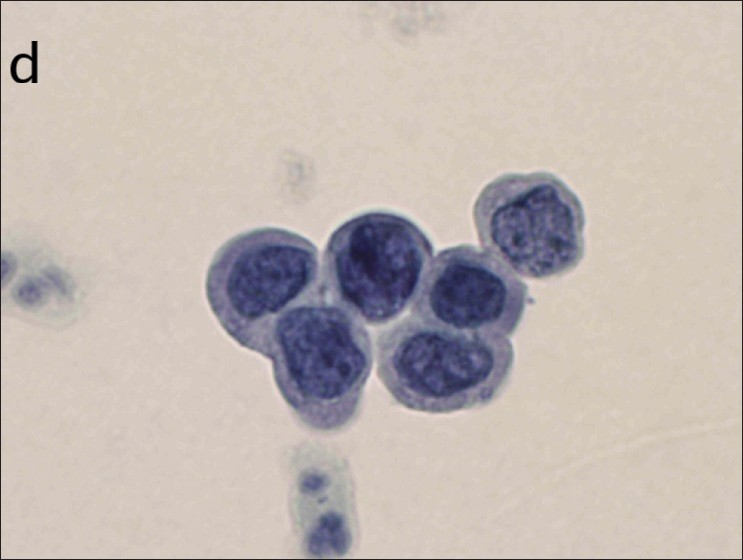 Squamous cell findings from cervical cytology example d
