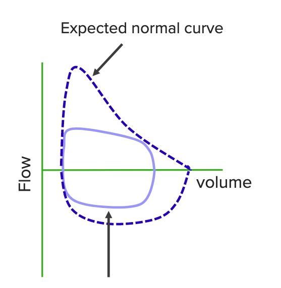 Squared flow volume loop Airway obstruction